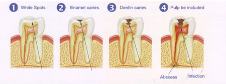 Dentalcariessteps_2
